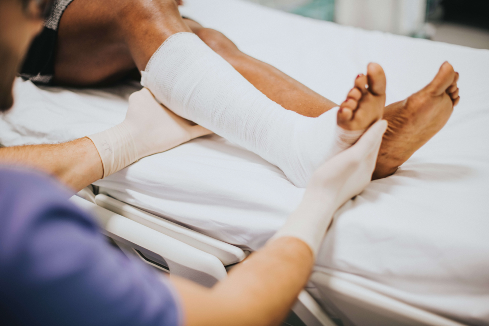 4 Things to Know Before Filing a Burn Injury Lawsuit